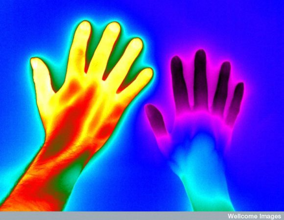 N0037151 Raynaud's Phenomenon Credit: Thermal Vision Research. Wellcome Images Images@wellcome.ac.uk Http://wellcomeimages.org The Condition Has Been Visualised Using Thermal Infrared Which Allows Us To See Thermal Energy Or Radiation More Commonly Referred To As Heat.  The Image Shows The Hand Of A Person Experiencing Symptoms Of Raynaud's Against That Of A Person Who Is Unaffected  The Hand Affected With Raynaud's Is On The Right, The Other Hand Is Unaffected. This Image Shows Both Hands After Exposure To Cold Water For 2 Minutes, Both Hands Appear To Emit Low Levels Of Radiation. This Image Illustrates How The Unaffected Hand Warms Considerably Quicker And Begins To Emit Higher Levels Of Radiation (heat) Soon After Exposure Whilst The Affected Hand Continues To Emit Lower Levels.  Thermal Infrared Is Found Within The Infrared Region On The Electromagnetic Spectrum.  The Different Colours In The Images Represent Different Levels Of Thermal Energy Being Emitted From The Skin's Surface. In This Image The Yellow And Orange Colours Show A High Level Of Thermal Energy And The Blue, Black And Purple A Lower Level.   Raynaud's Phenomenon (also Referred To As Raynaud's Syndrome Or Raynaud's Disease) Affects The Bodily Extremities, Most Commonly The Hands And Feet. On Exposure To Cold Or Stress, The Blood Vessels At The Extremities Constrict Or Narrow Restricting The Flow Of Blood, This Is Called Vasoconstriction. When This Happens In The Hands Then The Fingers Will Often Change Colour Becoming Very Pale As Less Blood Reaches The Surface Of The Skin, This Means There Is Also Less Radiation Of Heat From The Affected Area. Thermogram January 2015 Published:  -   Copyrighted Work Available Under Creative Commons By-nc-nd 4.0, See Http://wellcomeimages.org/indexplus/page/Prices.html